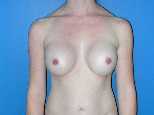Breast Implants 10 years  AFTER surgery