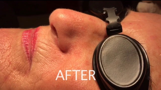 Laser Removal of Facial Veins After