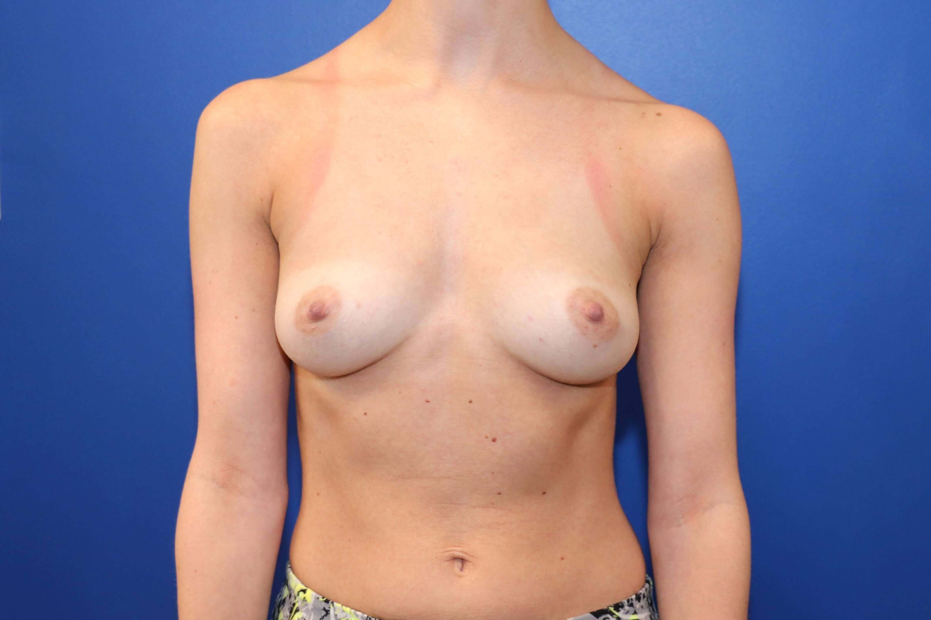 C cup Breast Implants Before