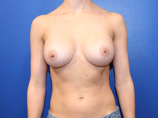 C cup Breast Implants After