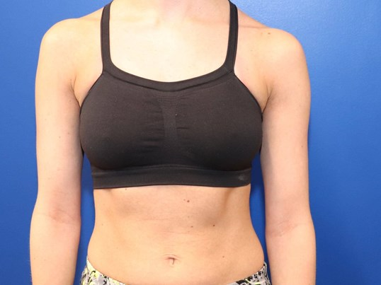 C cup Breast Augmentation Before