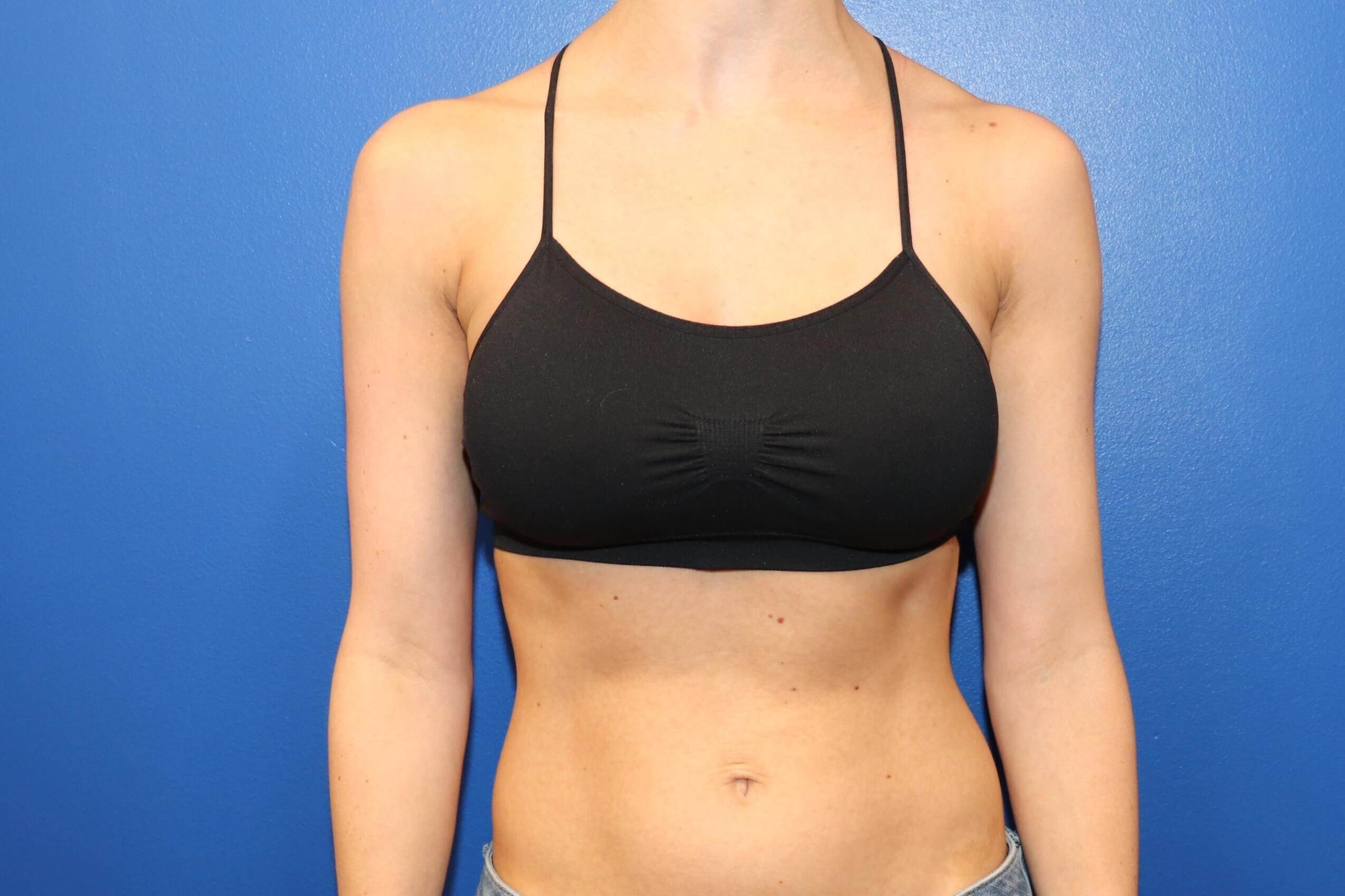 C cup Breast Augmentation After