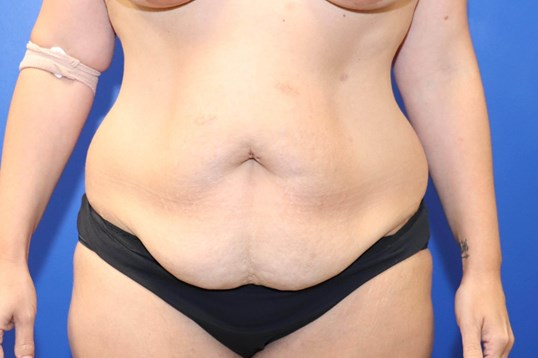 Tummy Tuck Mommy Makeover Before