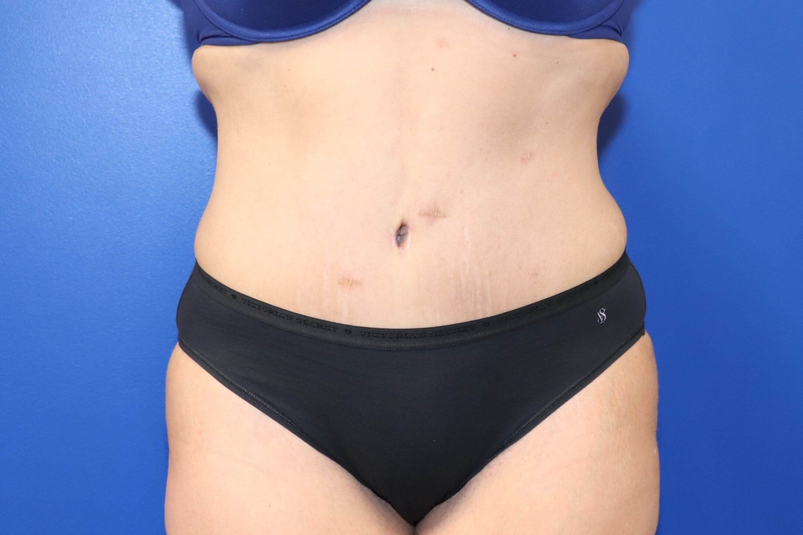Tummy Tuck Mommy Makeover After