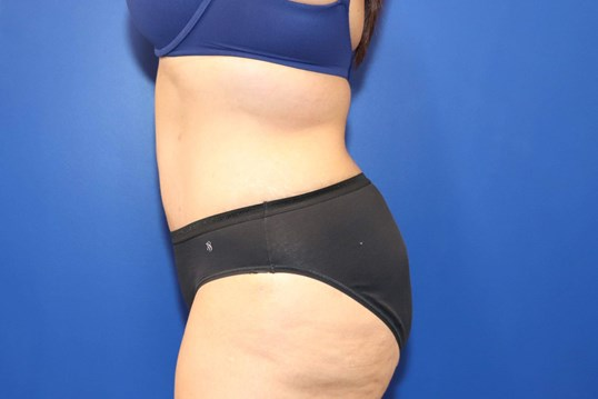 Tummy Tuck Abdominoplasty After