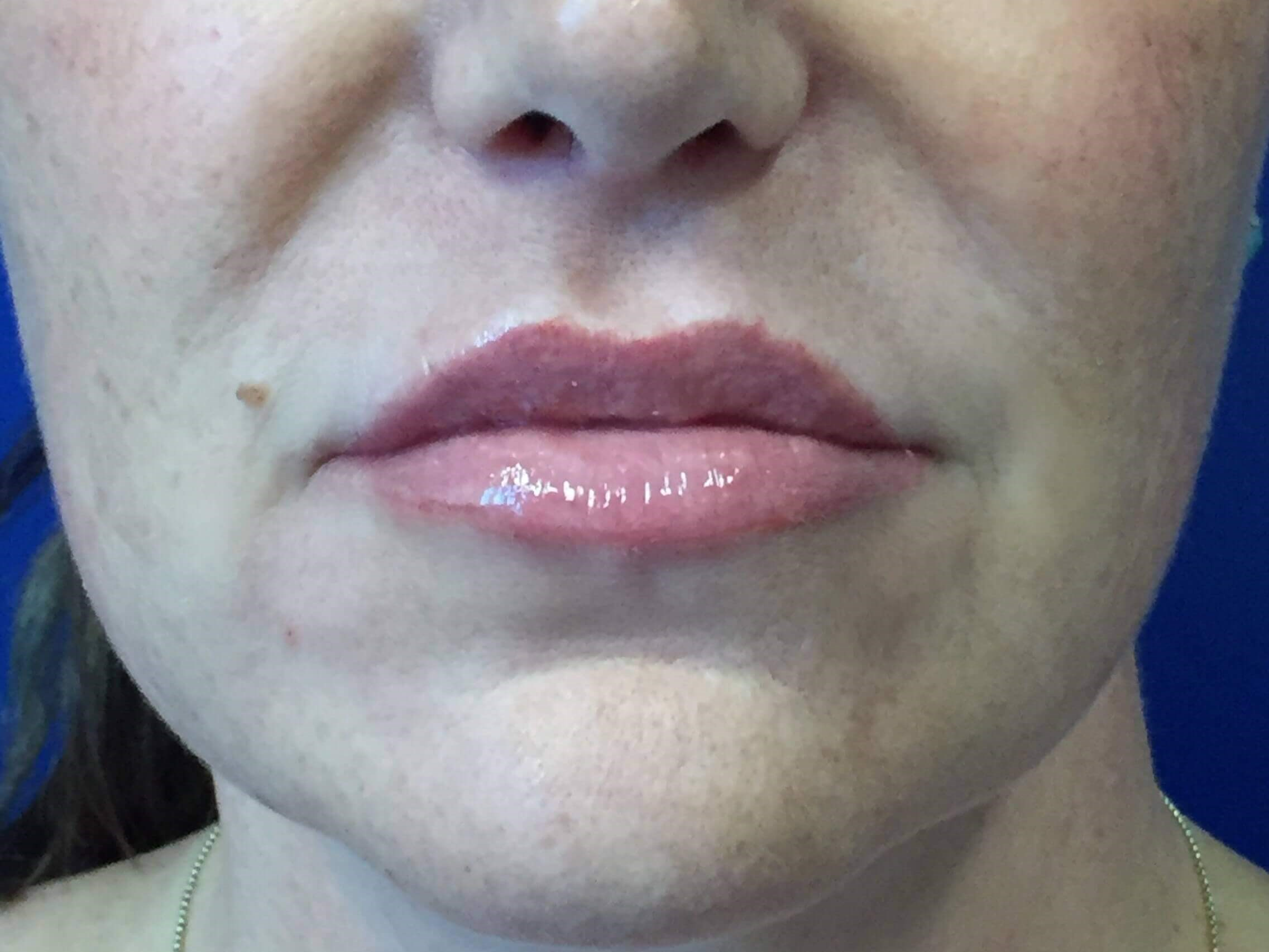 Lip Enhancement with Filler After