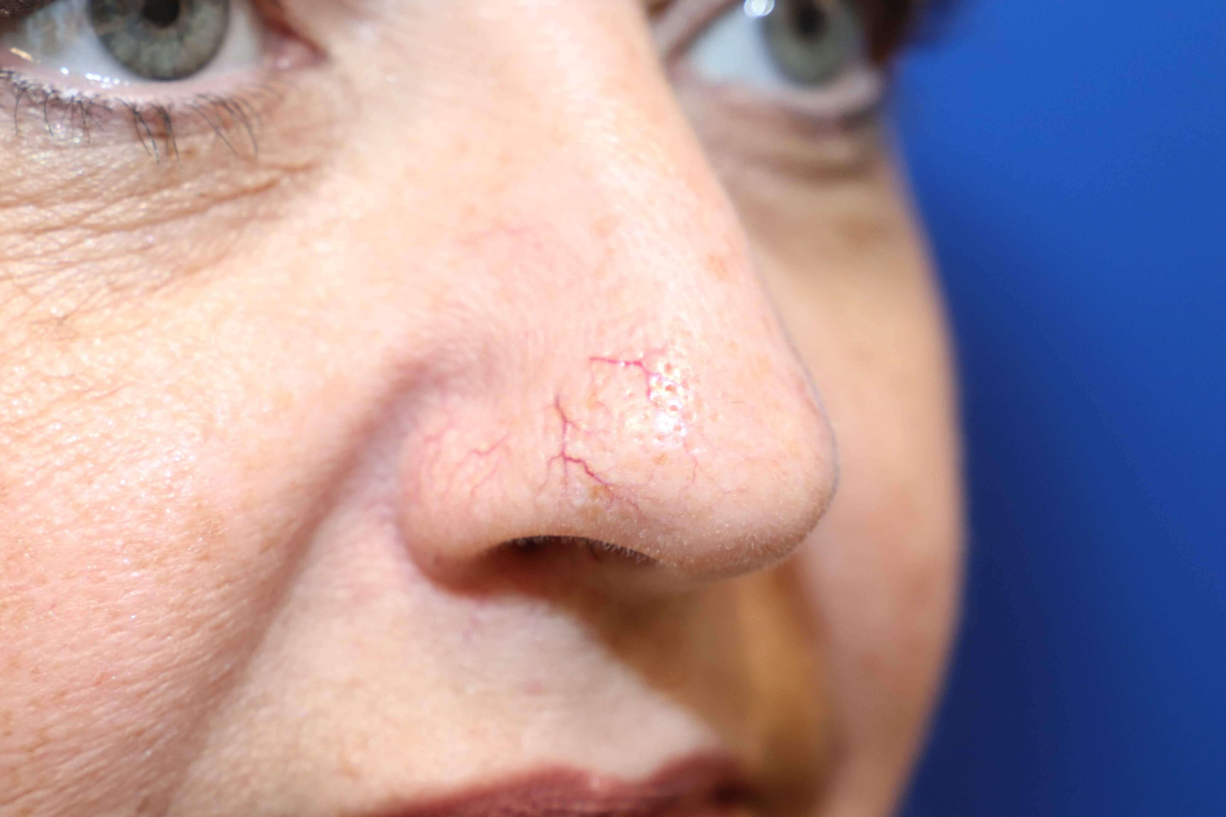 Laser Removal of Facial Veins Before