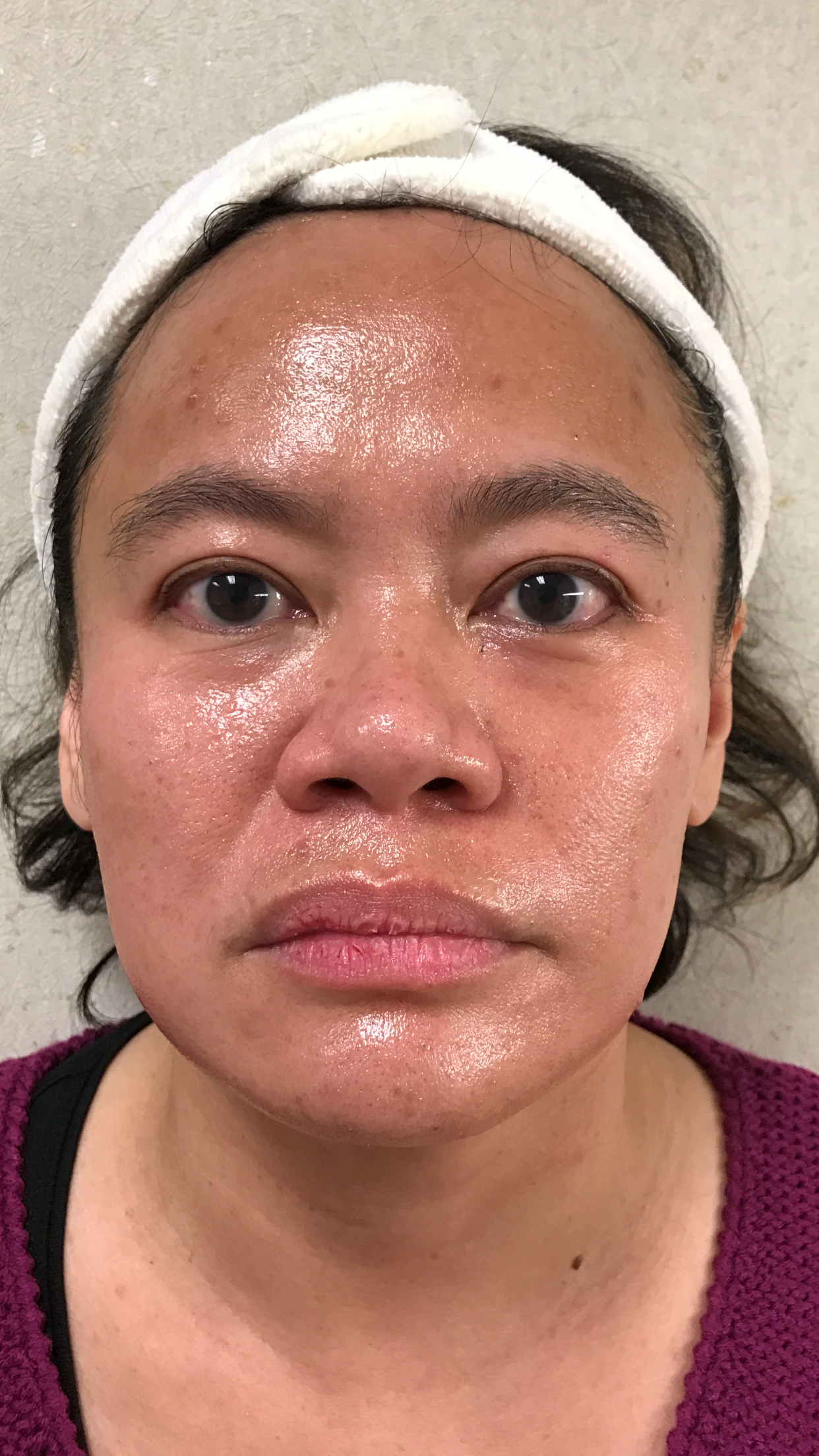 Microneedling Micro-Needling Before