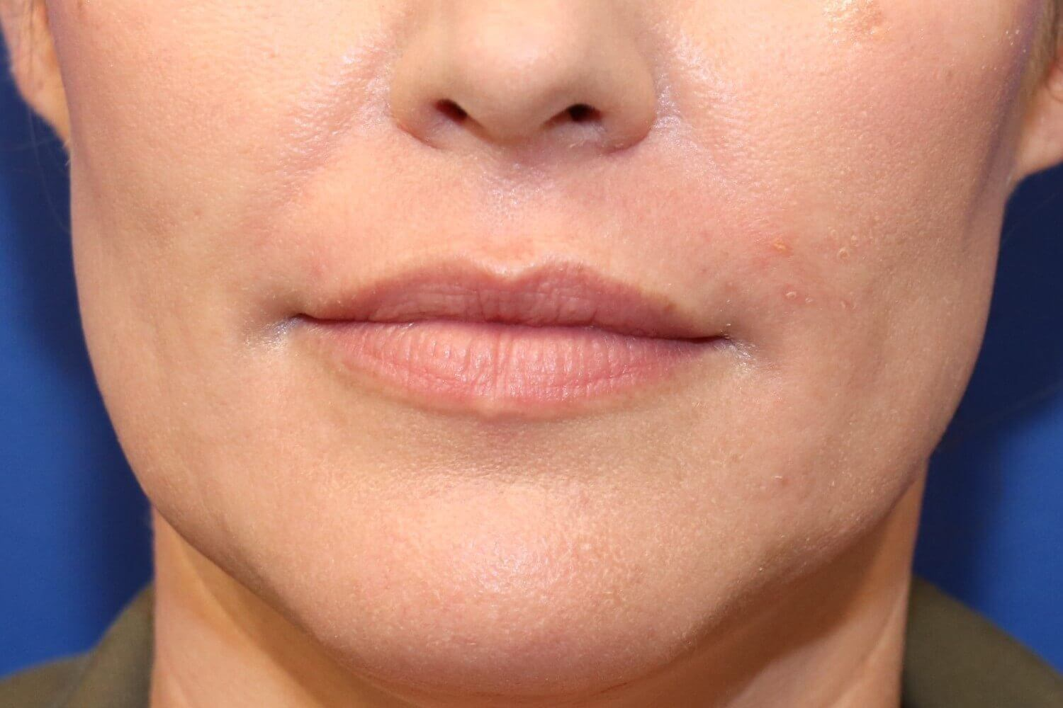 Lip Enhancement with Filler Before