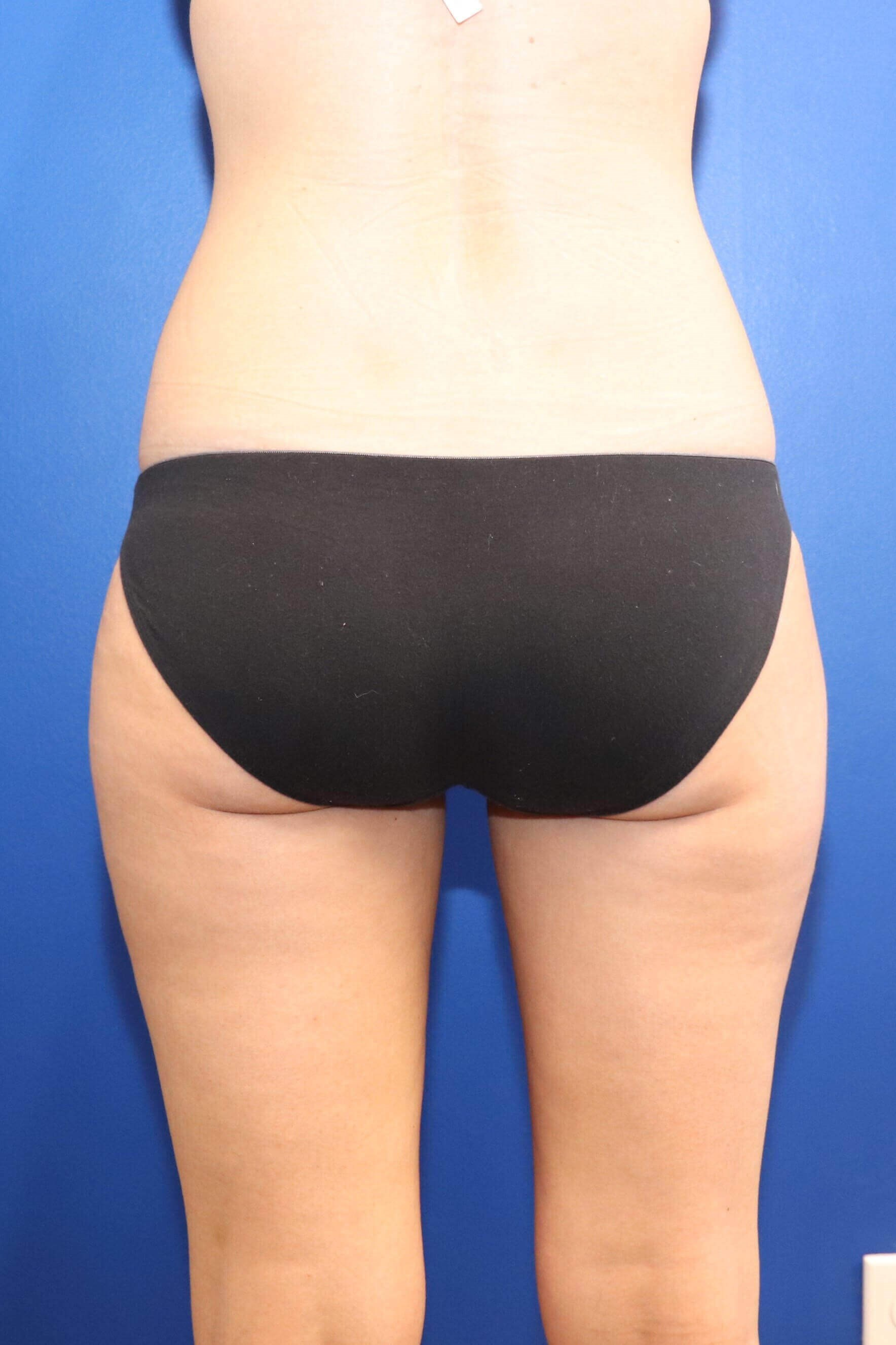 Sculpsure Fat Melting Laser Of Thighs