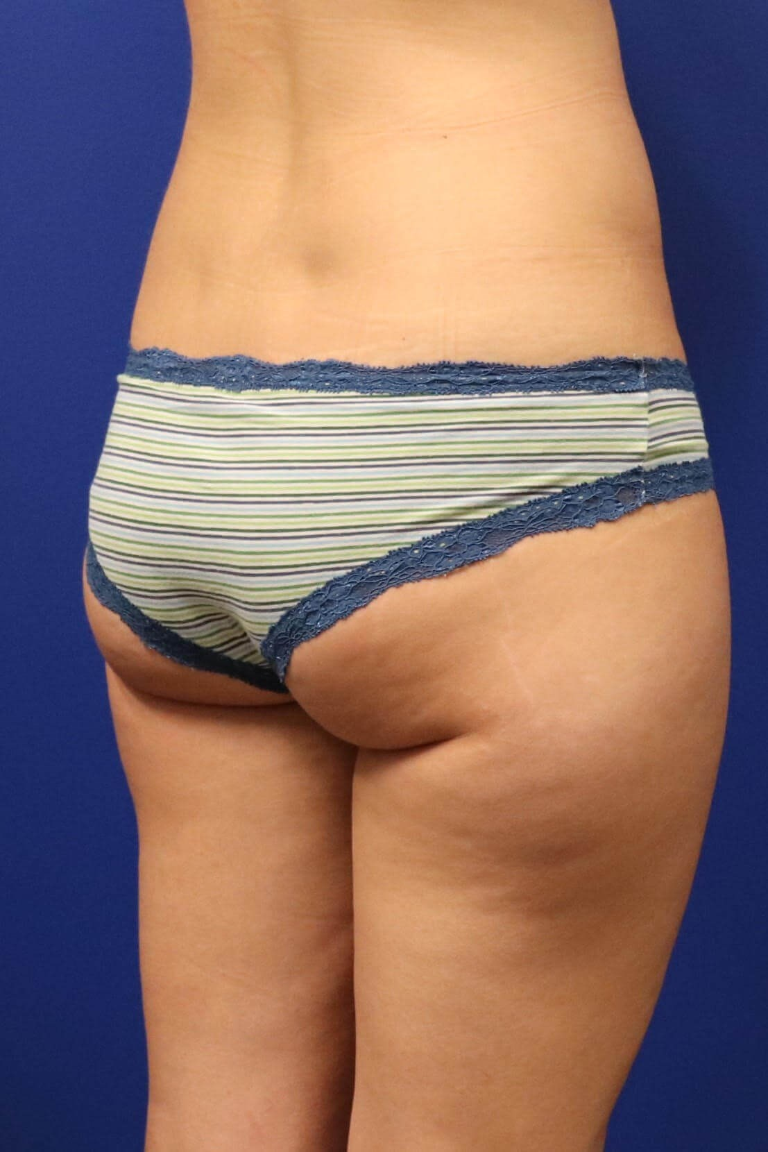 Sculpsure Fat Melting Laser Before