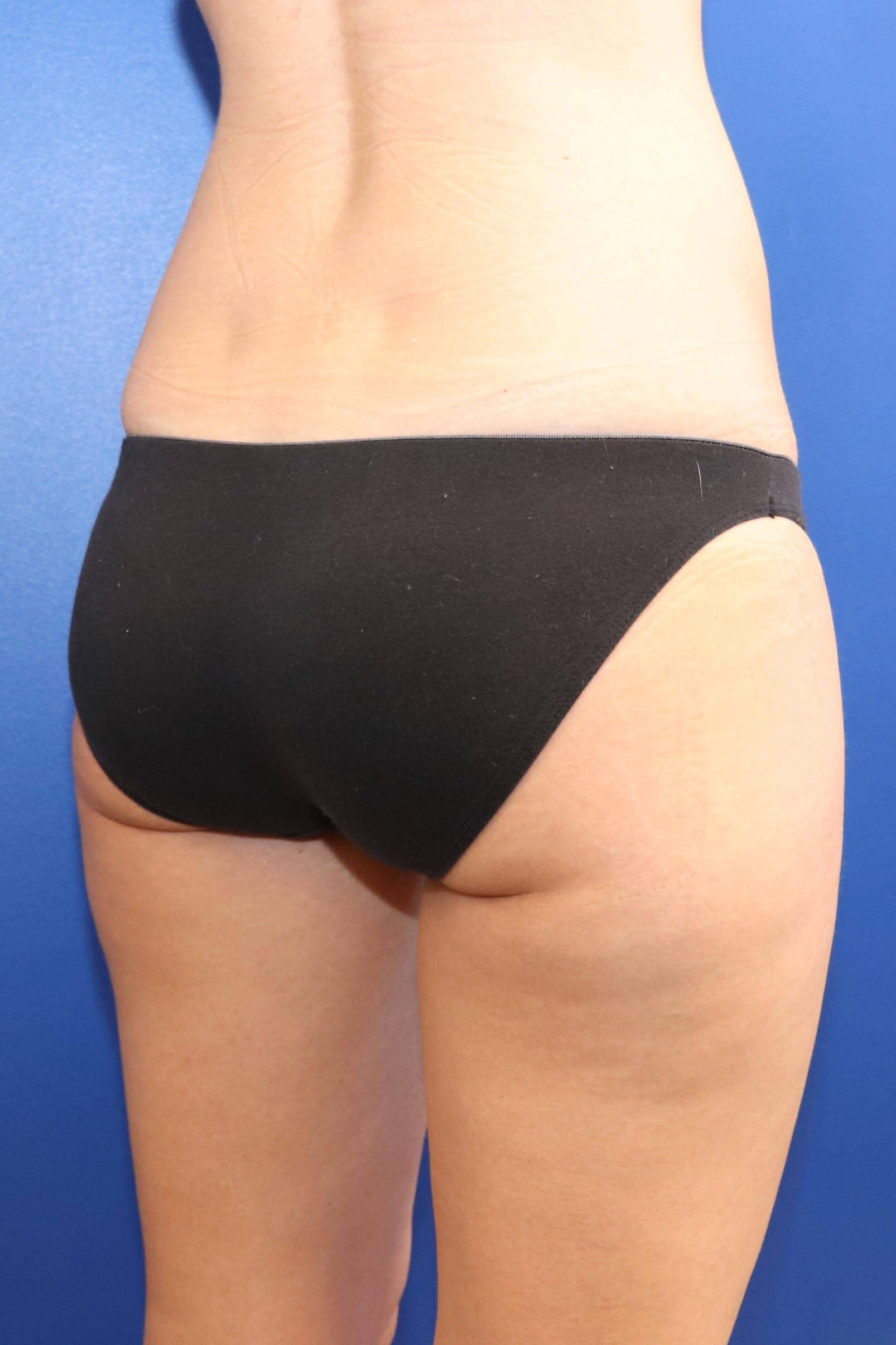 Sculpsure Fat Melting Laser After