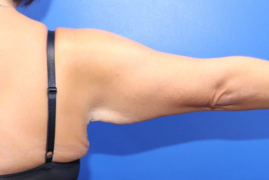 Arm Lift Brachioplasty Before