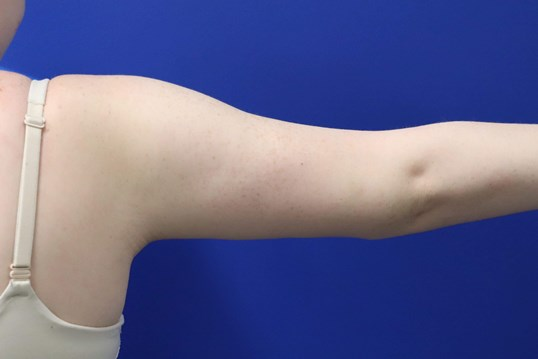 Arm Lift Brachioplasty After