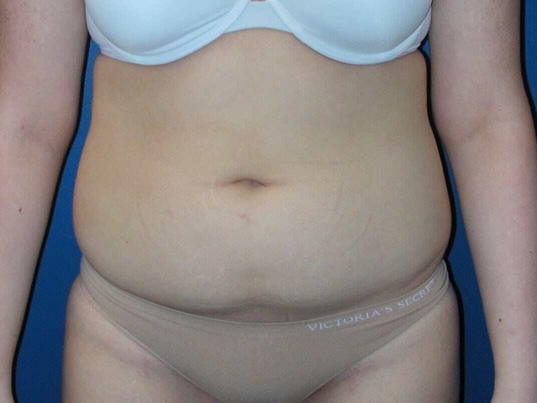 Mini Abdominoplasty Before