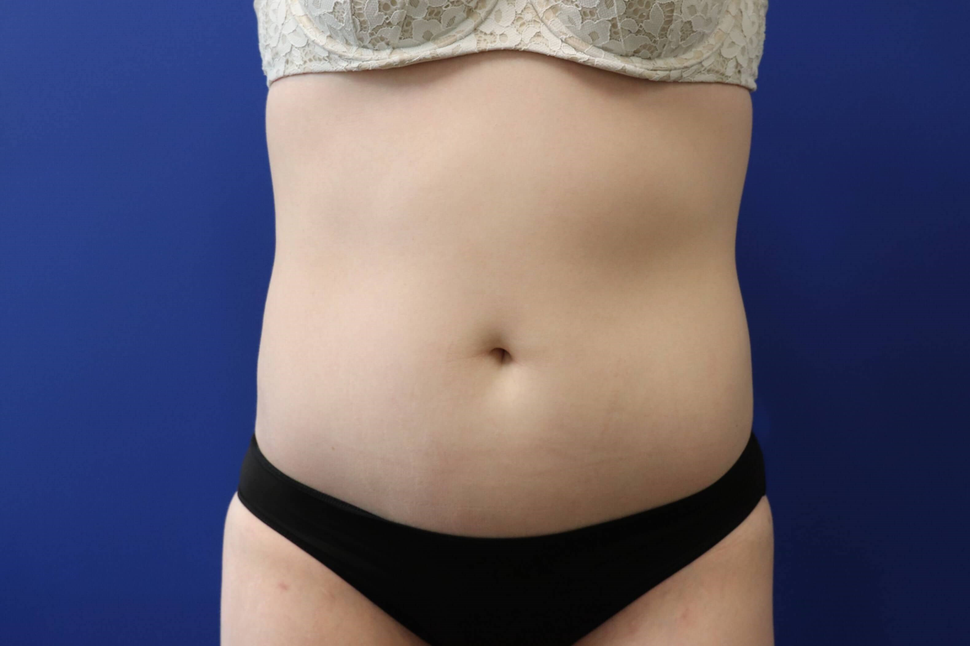 Mini Abdominoplasty After