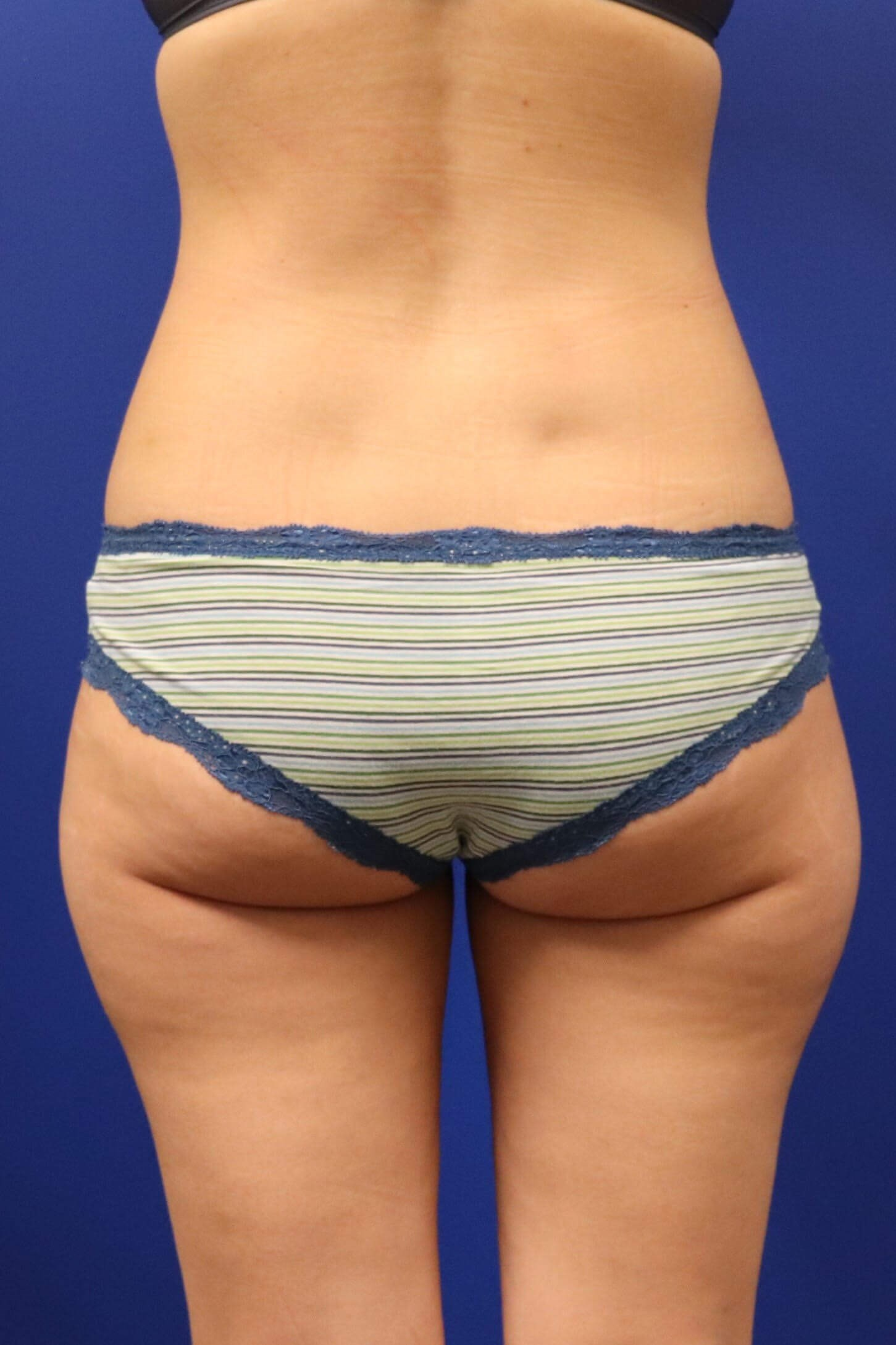 Sculpsure Outter Thighs Before