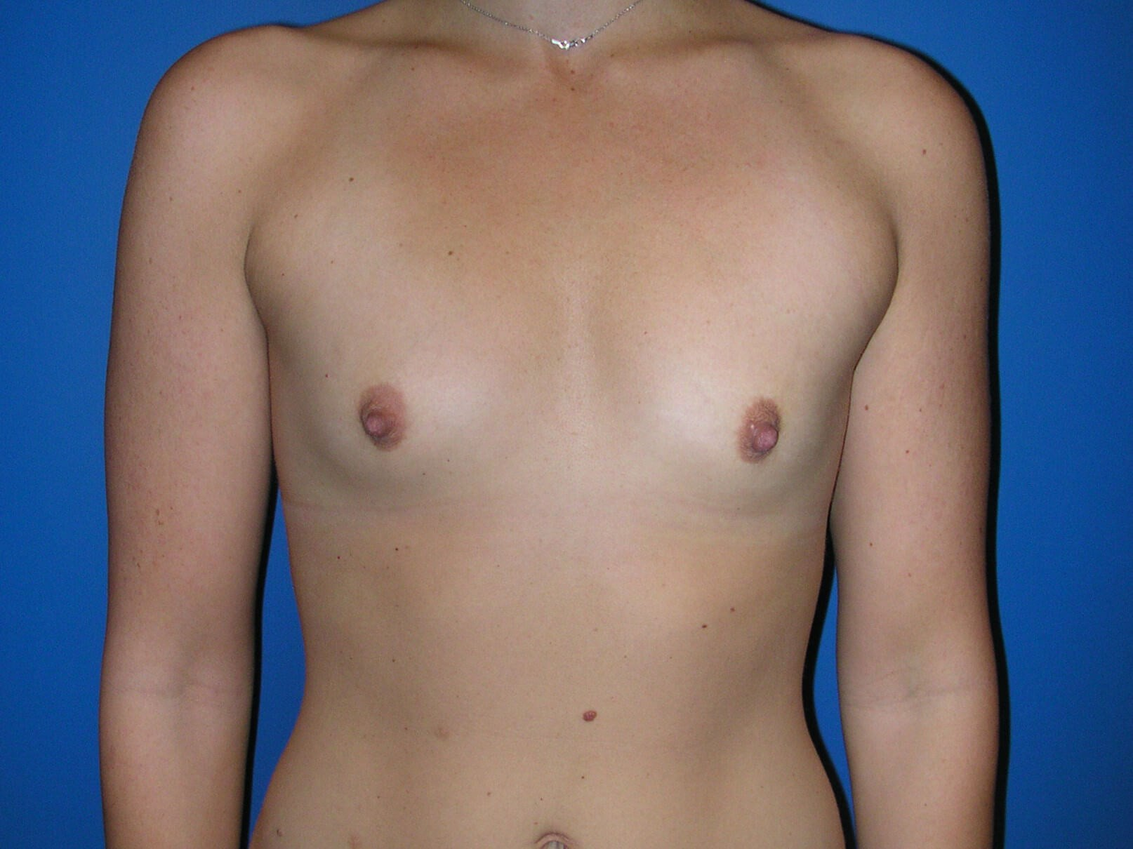 B cup breast augmentation Before