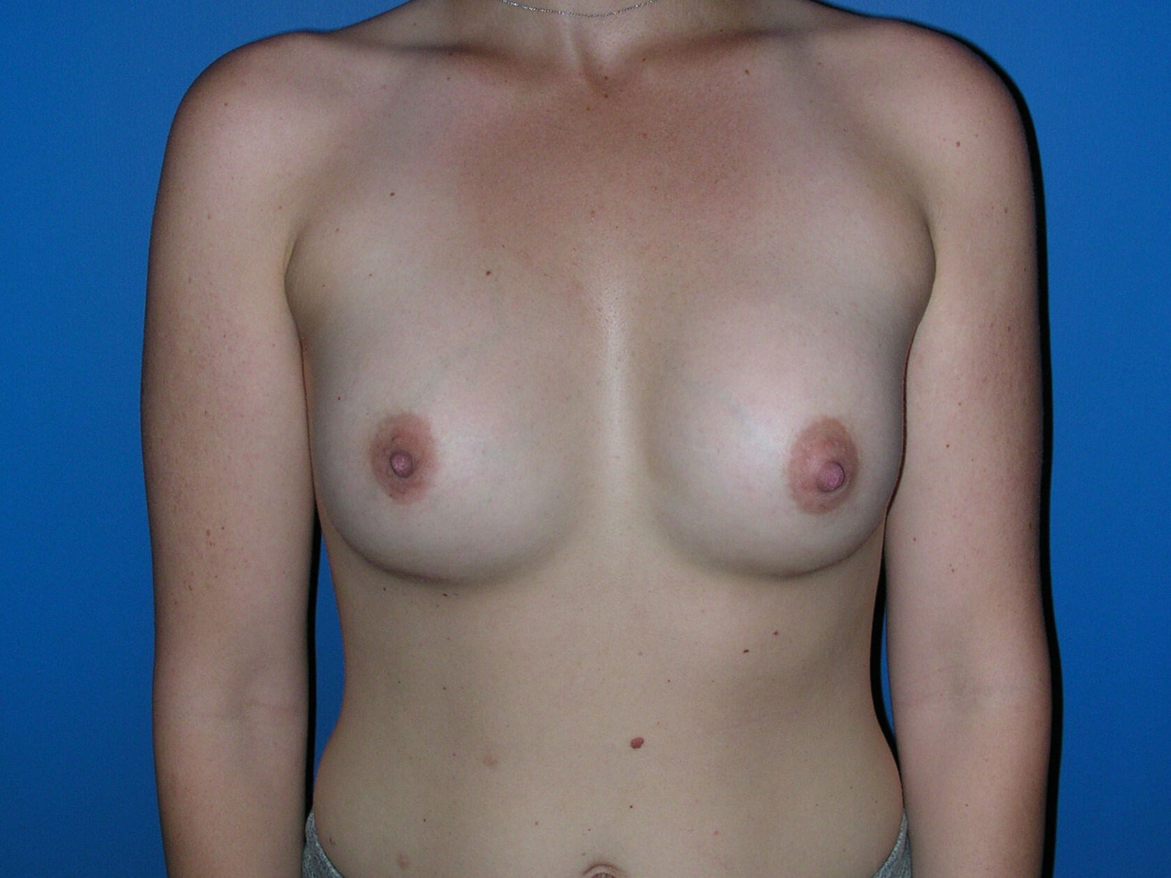 B cup breast augmentation After