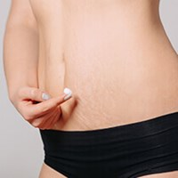 Laser Stretch Mark Treatment